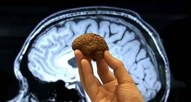 Cerveau de Pieuvre aussi petit qu'une noix
