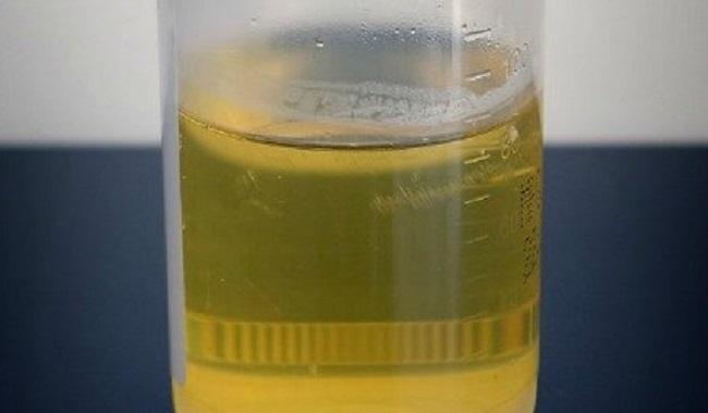 De l'urine